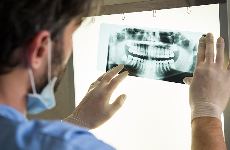 Closeup of dentist looking at dental x-ray plate